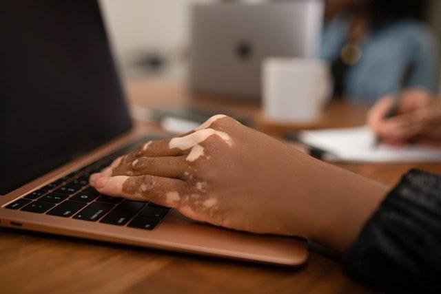 Hand with vitiligo on computer
